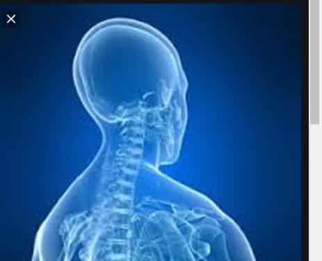 ¿Cuantos Tipos de Radiologías Existen?: